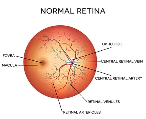 Diagram of a Normal Retina