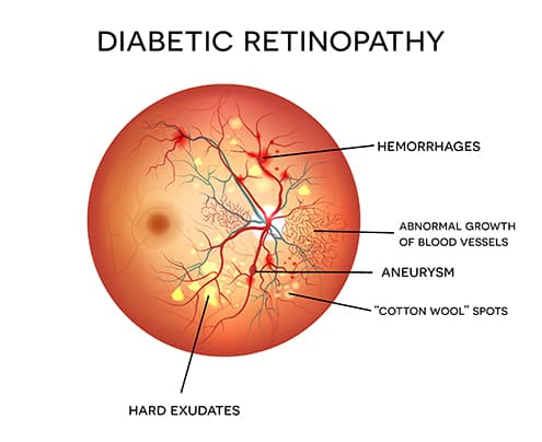 Diagram of Diabetic Retinopathy